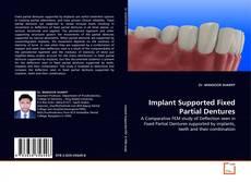 Portada del libro de Implant Supported Fixed Partial Dentures