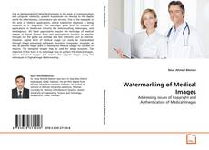 Bookcover of Watermarking of Medical Images