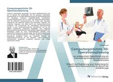Bookcover of Computergestützte 3D-Operationsplanung