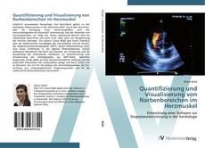 Buchcover von Quantifizierung und Visualisierung von Narbenbereichen im Herzmuskel