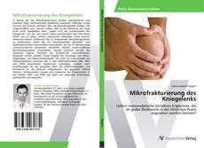 Buchcover von Mikrofrakturierung des Kniegelenks