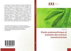 Bookcover of Etude anatomoclinique et évolutive des tumeurs nasosinusiennes