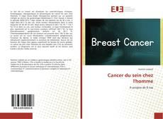 Bookcover of Cancer du sein chez l'homme