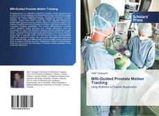 Capa do livro de MRI-Guided Prostate Motion Tracking