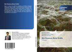 Bookcover of Bio-Osseous Bone Grafts