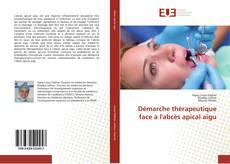 Bookcover of Démarche thérapeutique face à l'abcès apical aigu