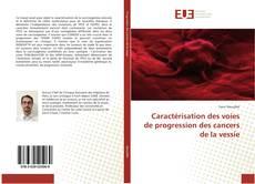 Обложка Caractérisation des voies de progression des cancers de la vessie