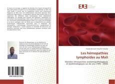 Bookcover of Les hémopathies lymphoïdes au Mali