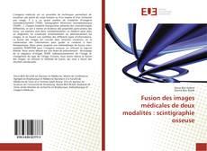 Buchcover von Fusion des images médicales de deux modalités : scintigraphie osseuse