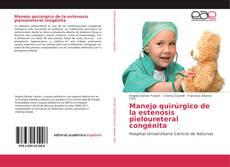 Bookcover of Manejo quirúrgico de la estenosis pieloureteral congénita