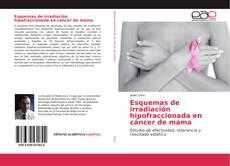 Portada del libro de Esquemas de irradiación hipofraccionada en cáncer de mama