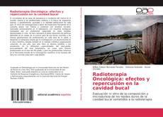 Copertina di Radioterapia Oncológica: efectos y repercusión en la cavidad bucal