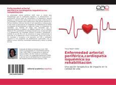 Bookcover of Enfermedad arterial periférica,cardiopatía isquémica:su rehabilitación