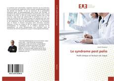 Bookcover of Le syndrome post polio