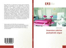 Bookcover of Inversion utérine puérpérale aigue