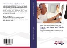 Borítókép a  Estudio radiológico de la litiasis urinaria - hoz