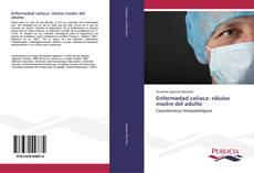 Enfermedad celíaca: células madre del adulto kitap kapağı