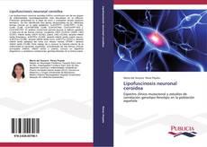 Bookcover of Lipofuscinosis neuronal ceroidea