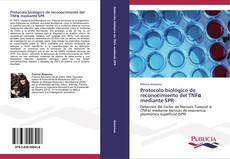 Borítókép a  Protocolo biológico de reconocimiento del TNFα mediante SPR - hoz