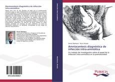 Copertina di Amniocentesis diagnóstica de infección intra-amniótica