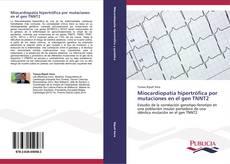 Miocardiopatía hipertrófica por mutaciones en el gen TNNT2的封面