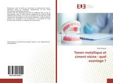 Tenon metallique et ciment résine : quel avantage ? kitap kapağı