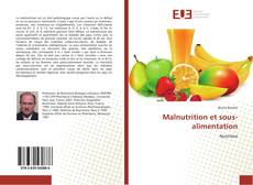 Bookcover of Malnutrition et sous-alimentation