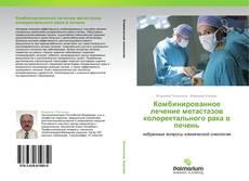 Portada del libro de Комбинированное лечение метастазов колоректального рака в печень