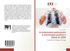 Bookcover of La tuberculose pulmonaire à microscopie positive à Opala en 2009