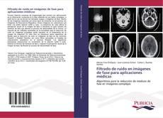 Portada del libro de Filtrado de ruido en imágenes de fase para aplicaciones médicas