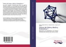 Bookcover of Cáncer de Colon y Recto y Endotelina-1