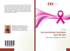 Les carcinomes mucineux purs du sein kitap kapağı