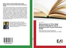 Copertina di Maturazione in Vitro degli Ovociti nelle Donne con la Sindrome dell' Ovaio Policistico 'PCOS'