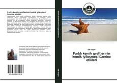 Bookcover of Farklı kemik greftlerinin kemik iyileşmesi üzerine etkileri