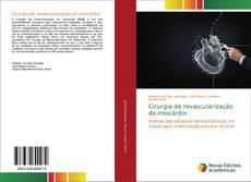 Bookcover of Cirurgia de revascularização do miocárdio