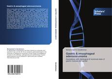Bookcover of Gastric & oesophageal adenocarcinoma