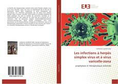 Copertina di Les infections à herpès simplex virus et à virus varicelle-zona
