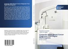 Bookcover of Computer-Aided Breast Cancer Diagnosis From Digital Mammograms