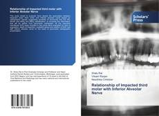 Bookcover of Relationship of Impacted third molar with Inferior Alveolar Nerve