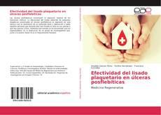 Buchcover von Efectividad del lisado plaquetario en úlceras posflebíticas
