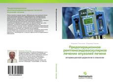 Bookcover of Предоперационное рентгеноэндоваскулярное лечение опухолей печени