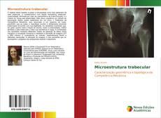 Обложка Microestrutura trabecular