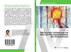 Copertina di MR-Scanner Validierung mit Hilfe von Normdatenbanken der Hirnperfusion
