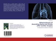 Atherosclerosis of Ascending Aorta and Stroke after Cardiac Surgery kitap kapağı