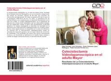 Bookcover of Colecistectomía Videolaparoscópica en el adulto Mayor