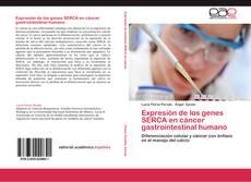 Borítókép a  Expresión de los genes SERCA en cáncer gastrointestinal humano - hoz