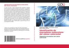 Bookcover of Identificación de marcadores moleculares del cáncer colorrectal