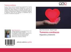 Tumores cardíacos的封面