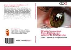Portada del libro de Cirugía de catarata e iStent Glaukos en el tratamiento del glaucoma