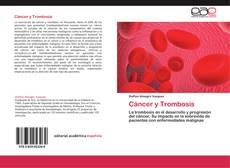 Borítókép a  Cáncer y Trombosis - hoz